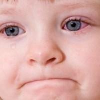 Виды коньюнктивита у детей