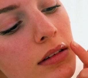 Герпес во время беременности на губах во втором триместре
