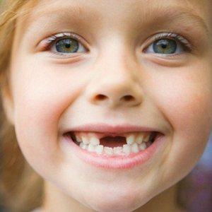 молочные зубу у девочки