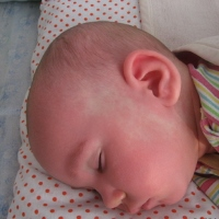 красные пятна на теле у ребенка