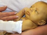 Опасна ли желтушка у новорождённых, и какие могут быть последствия?