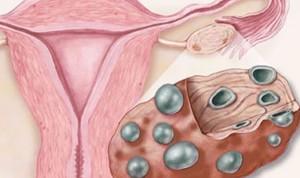 возможна ли беременность при эрозии